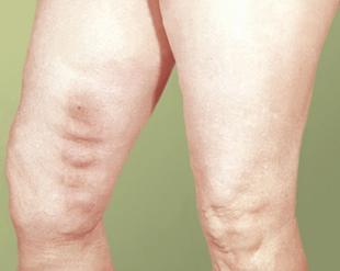 Лечение осложнений варикозной болезни
