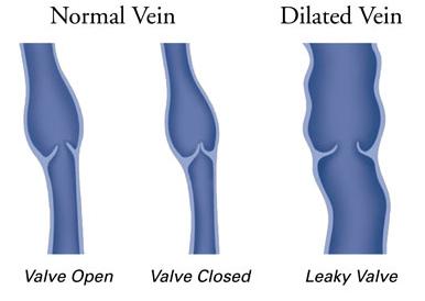 Лечение варикозной болезни нижних конечностей