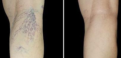 Лечение ретикулярного варикоза, «сосудистых звездочек»