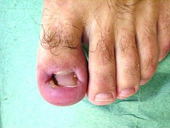 Лечение гнойно-воспалительных процессов кожи, подкожной клетчатки
