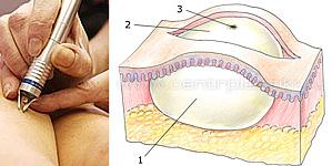 Удаление образований кожи и подкожной клетчатки
