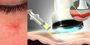 Микросклерапия ретикулярных вен, сосудистых звёздочек