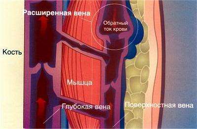 Кровь из вены у ребенка 1 год