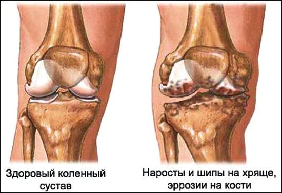 артроз суставов в каком возрасте