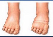 отёчная и нормальная нога