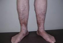 pigmentatia на фоне хронической венозной недостаточности