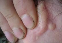 Атерома за ухом